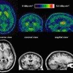 Human Brain Using 11C-SCH442416 PET: A Pilot Study