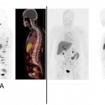 [18F]-Estradiol PET/CT Imaging in Breast Cancer Patients