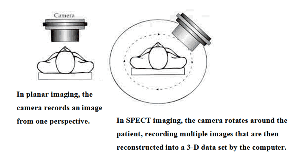 Figure 1: A schematic diagram of SPECT Imaging.