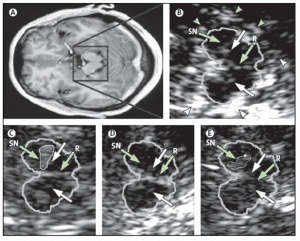 Update on transcranial sonography applications in movement disorders