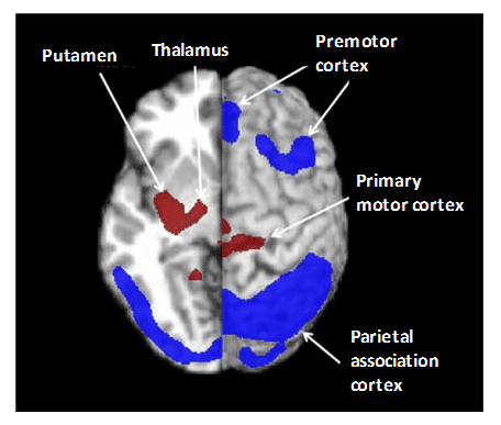 Figure 10. PET Imaging of Parkinson's disease