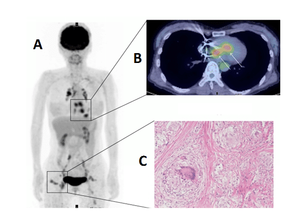 Figure 12. PET Imaging of cardiac sarcoidosis
