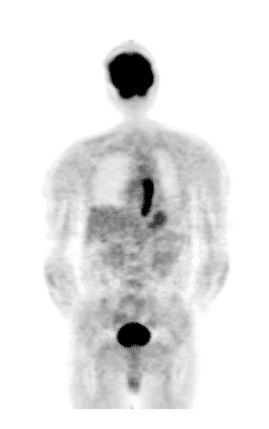 Figure 7. PET Imaging of esophageal cancer