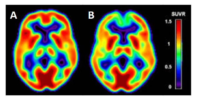 Figure 9. PET Imaging of Alzheimer's disease