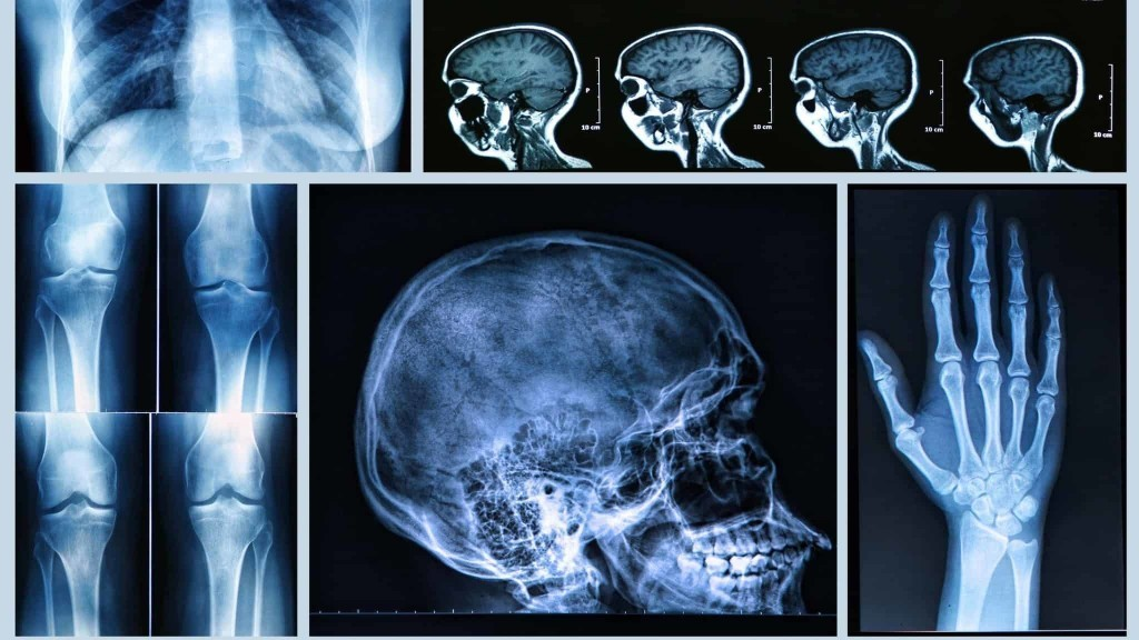 Image result for medical radiography