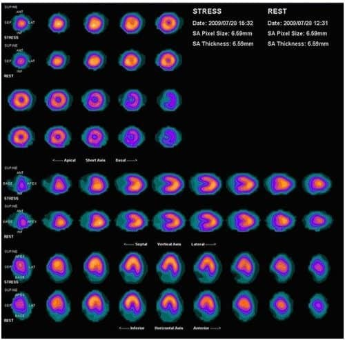 Stress Test Wiki: SPECT Imaging, Myocardial Perfusion, Brain Imaging
