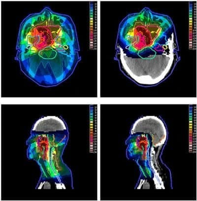 X-Ray-Therapy-and-Proton-Therapy
