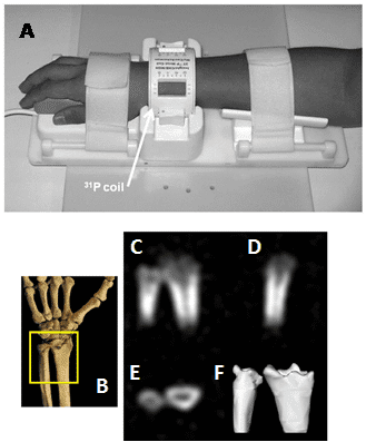 solid-state-NMR-MRI-bone