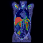 Coronal view of fused 11C-choline PET-CT