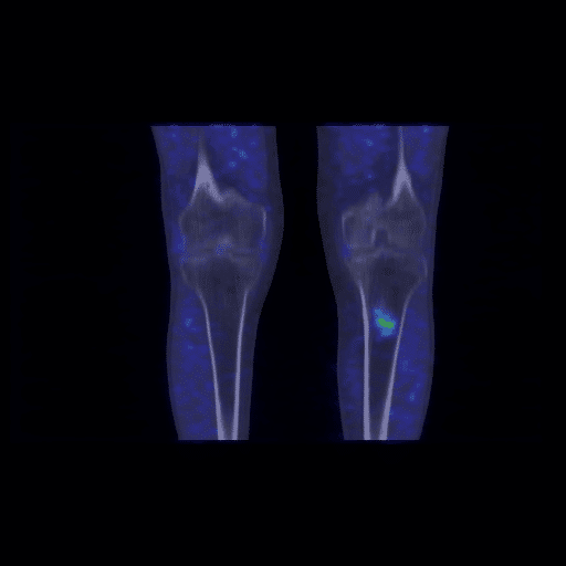 Figure 3C. Coronal view of and fused 11C-choline PET/CT images (C) of the inferior limb at knee height. There is a region of increased uptake of 11C-choline in the area of bone thickening evident in the CT scan.