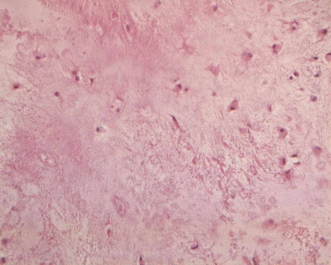 Figure 4A. Typical enchondroma: hypocellular tumor with abundant hyaline cartilage matrix without necrosis and mitosis (e.e. 20x).