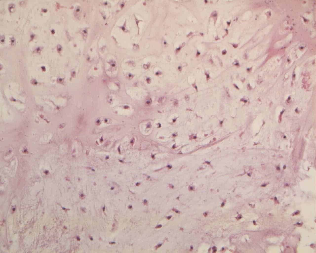 Figure 4B. Chondrocytes with finely granular eosinophilic cytoplasm is often vacuolated with small nuclei (e.e. 20x).