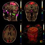 fMRI of the brain