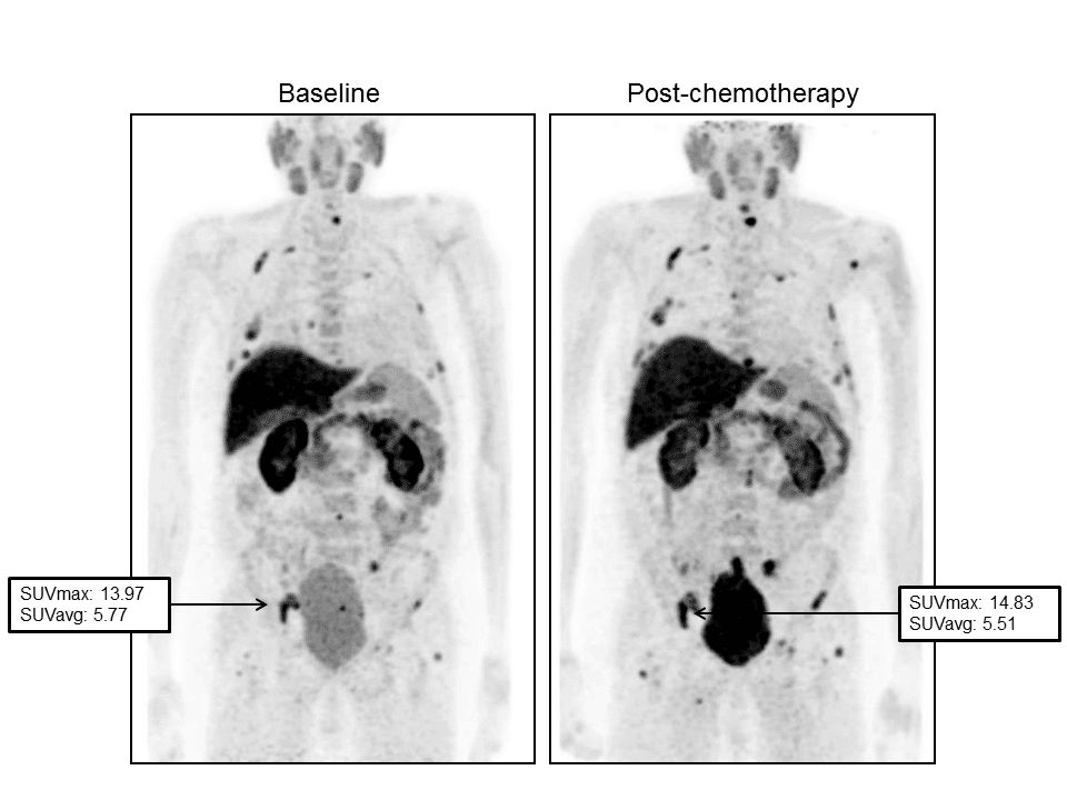 Figure 2. Images demonstrated a progression of disease during Docetaxel. Baseline FCH-PET (left) demonstrated a significant tracer uptake in bones.