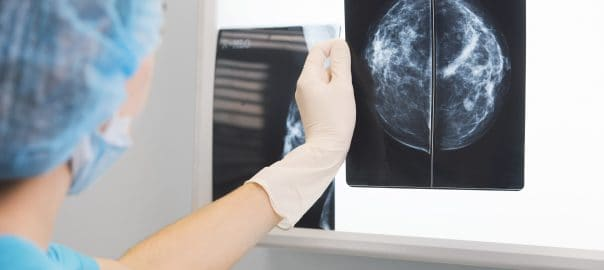 Positron Emission Mammography