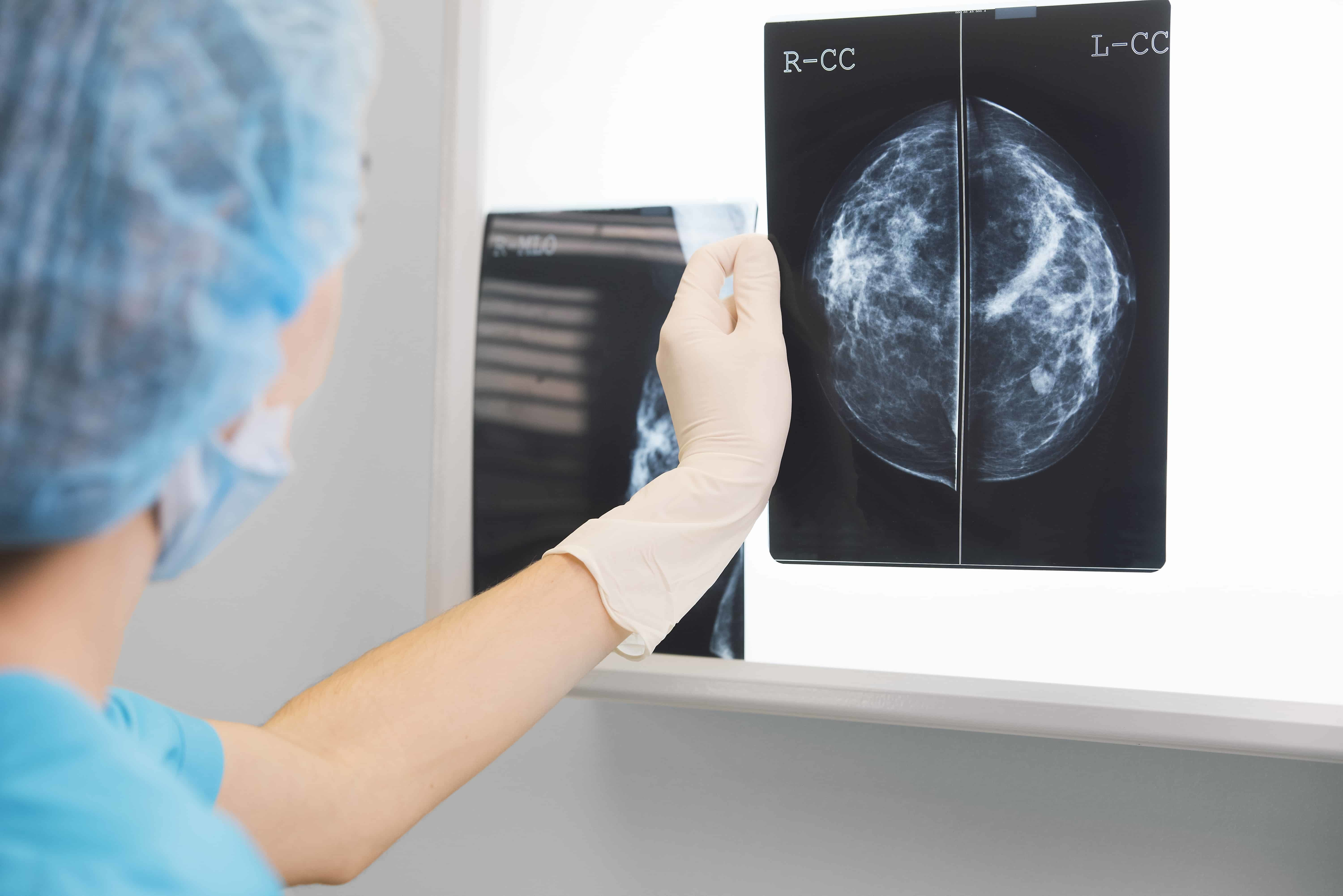 Positron Emission Mammography | Open Medscience