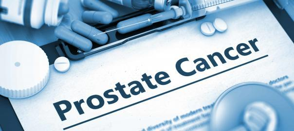 Brachytherapy is used in the treatment of prostate cancer