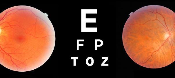 Advanced eye scan of the optic nerve