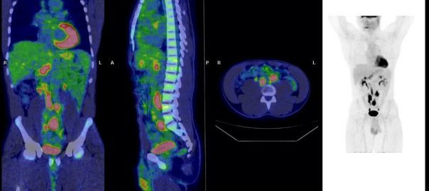 Journal of Diagnostic Imaging in Therapy